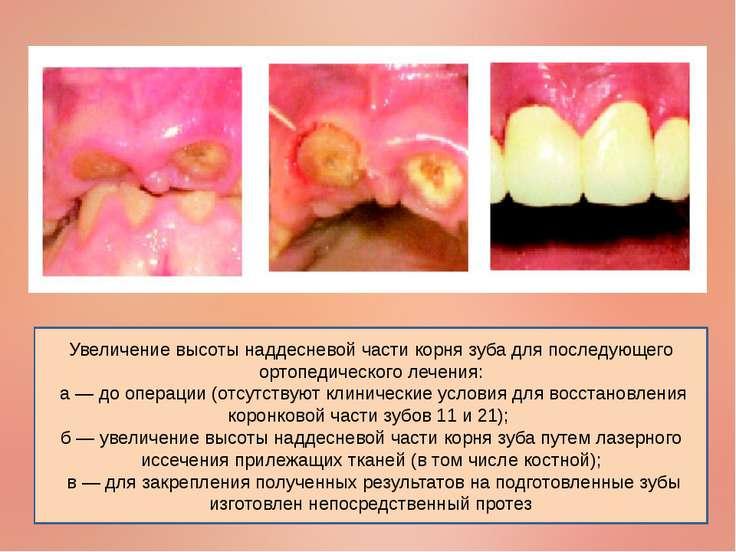 Увеличение высоты наддесневой части корня зуба для последующего ортопедическо...