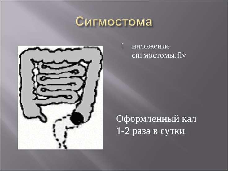 наложение сигмостомы.flv Оформленный кал 1-2 раза в сутки