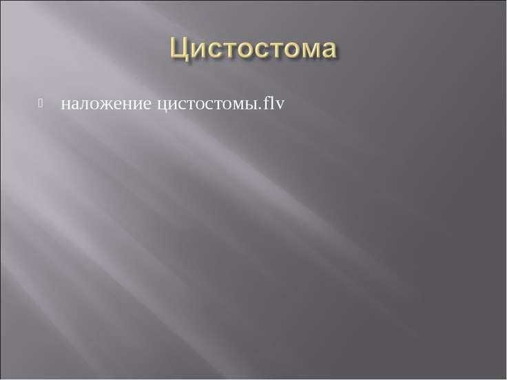 наложение цистостомы.flv