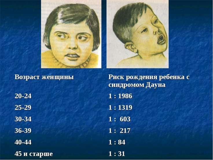 Возраст женщины Риск рождения ребенка с синдромом Дауна 20-24 1 : 1986 25-29 ...