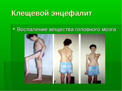 Клещевой энцефалит Воспаление вещества головного мозга