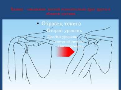 Вывих – смещение костей относительно друг друга в области сустава