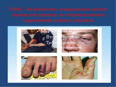 Ушиб – механическое повреждение мягких тканей или органов, не сопровождающее ...