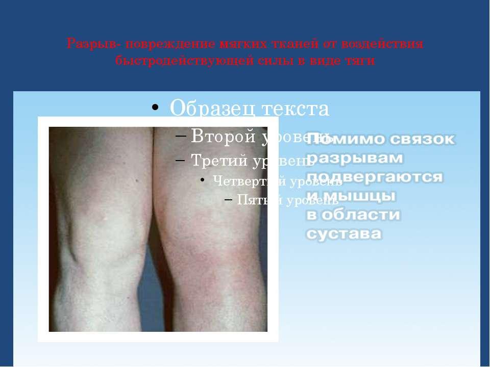 Разрыв- повреждение мягких тканей от воздействия быстродействующей силы в вид...