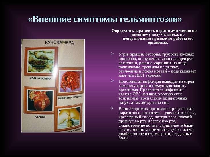 «Внешние симптомы гельминтозов» Определить заразность паразитами можно по вне...