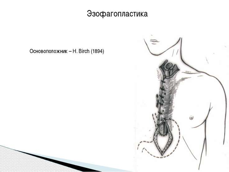Эзофагопластика Основоположник – H. Birch (1894)