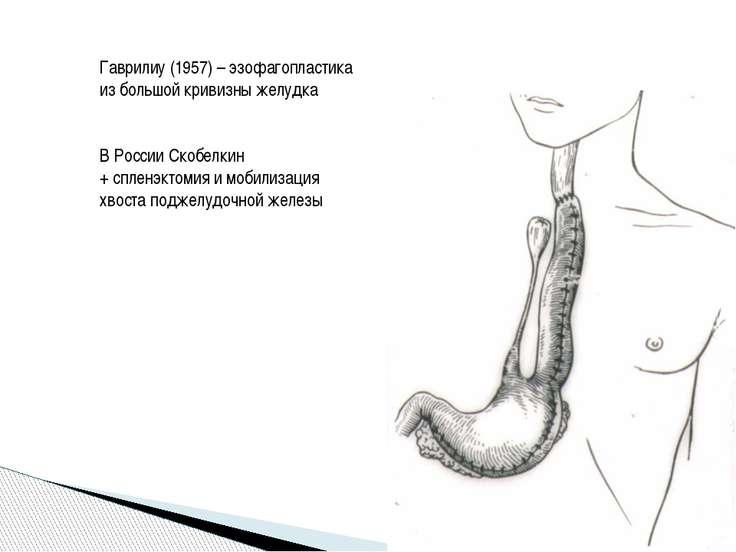 Гаврилиу (1957) – эзофагопластика из большой кривизны желудка В России Скобел...