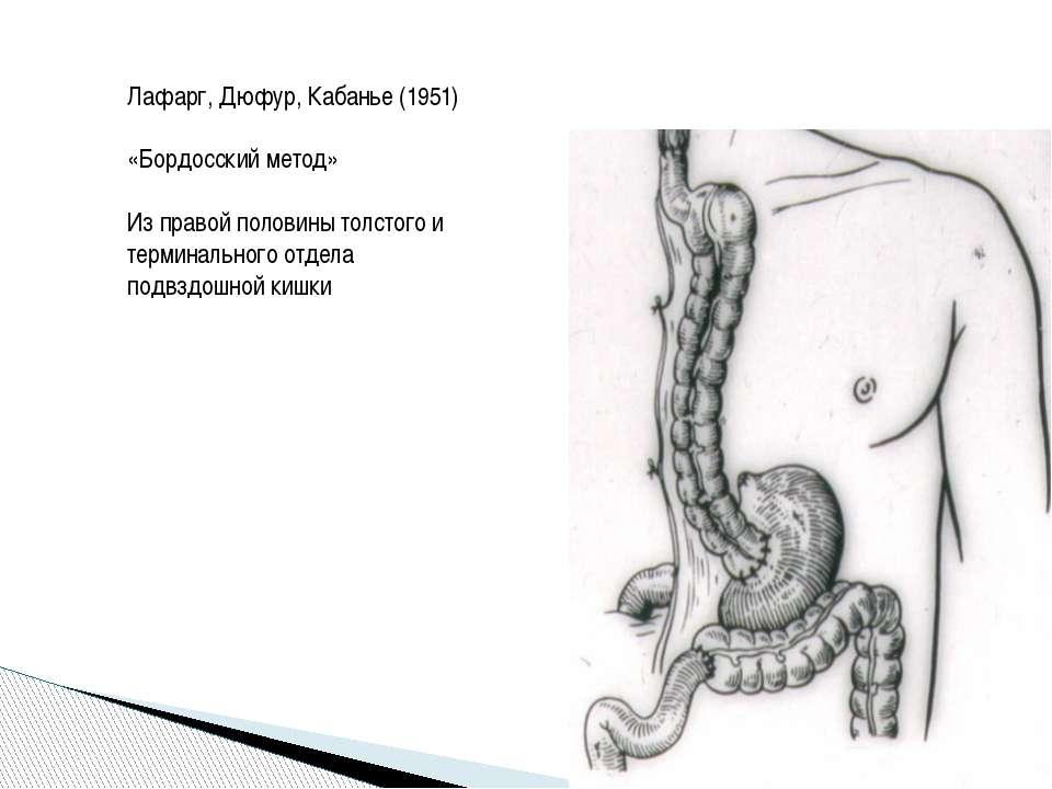 Лафарг, Дюфур, Кабанье (1951) «Бордосский метод» Из правой половины толстого ...