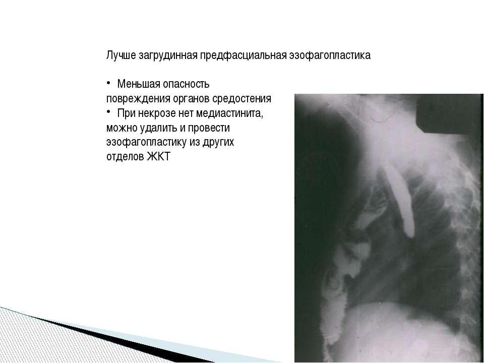 Лучше загрудинная предфасциальная эзофагопластика Меньшая опасность поврежден...