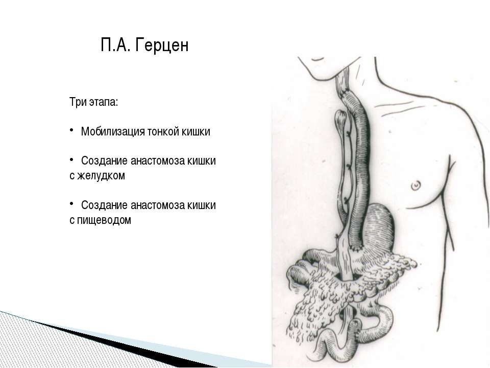 П.А. Герцен Три этапа: Мобилизация тонкой кишки Создание анастомоза кишки с ж...