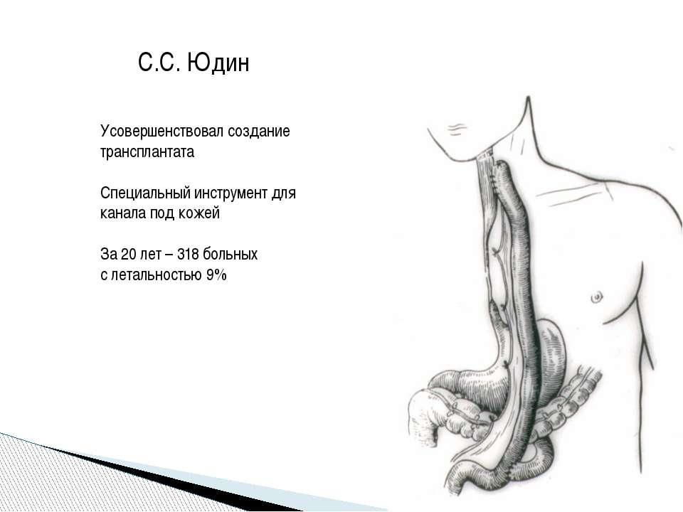 С.С. Юдин Усовершенствовал создание трансплантата Специальный инструмент для ...