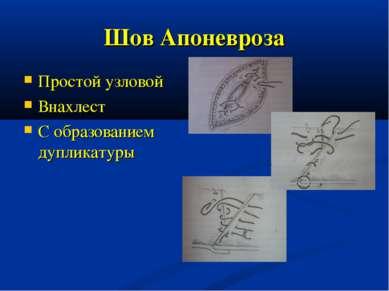 Шов Апоневроза Простой узловой Внахлест С образованием дупликатуры