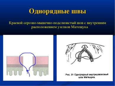 Однорядные швы Краевой серозно-мышечно-подслизистый шов с внутренним располож...