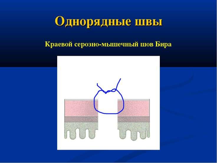 Однорядные швы Краевой серозно-мышечный шов Бира