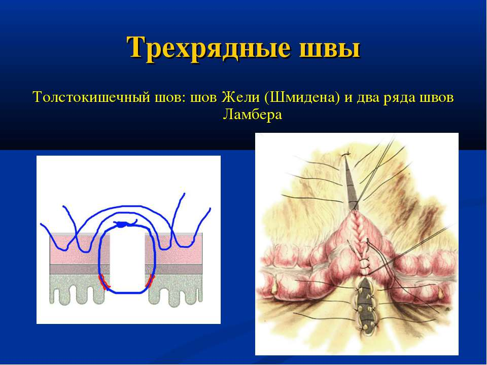 Трехрядные швы Толстокишечный шов: шов Жели (Шмидена) и два ряда швов Ламбера
