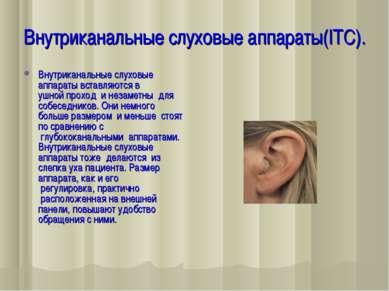 Внутриканальные слуховые аппараты(ITC). Внутриканальные слуховые аппараты вст...