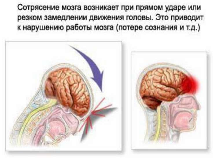 Сотрясение мозга та его симптомы и как его лечить