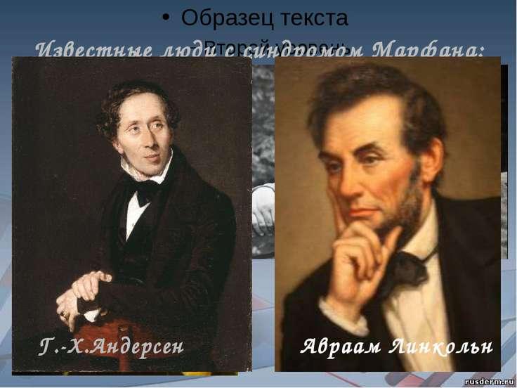 Известные люди с синдромом Марфана: Н. Паганини К.И. Чуковский Г.-Х.Андерсен ...
