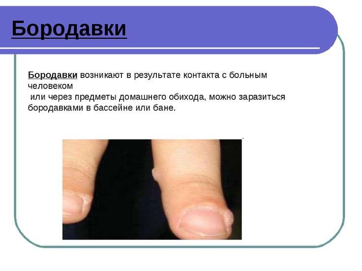 Бородавки Бородавки возникают в результате контакта с больным человеком или ч...