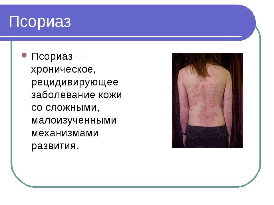 Псориаз Псориаз — хроническое, рецидивирующее заболевание кожи со сложными, м...