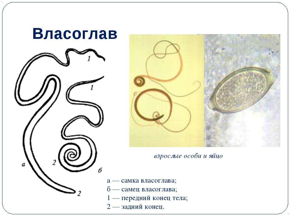 Власоглав а — самка власоглава; б — самец власоглава; 1 — передний конец тела...