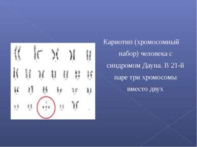 Кариотип (хромосомный набор) человека с синдромом Дауна. В 21-й паре три хром...