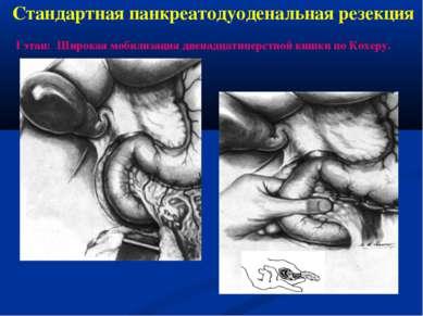 Стандартная панкреатодуоденальная резекция I этап: Широкая мобилизация двенад...