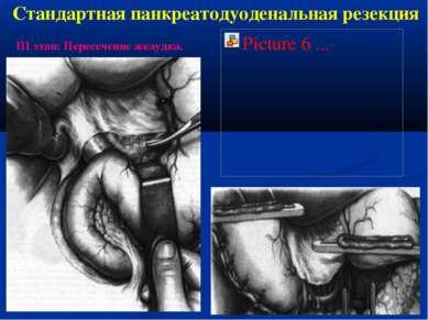 Стандартная панкреатодуоденальная резекция III этап: Пересечение желудка.