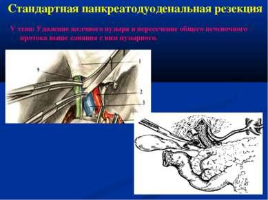 Стандартная панкреатодуоденальная резекция V этап: Удаление желчного пузыря и...