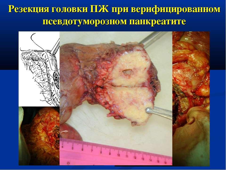 Резекция головки ПЖ при верифицированном псевдотуморозном панкреатите