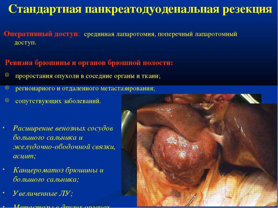 Стандартная панкреатодуоденальная резекция Оперативный доступ: срединная лапа...