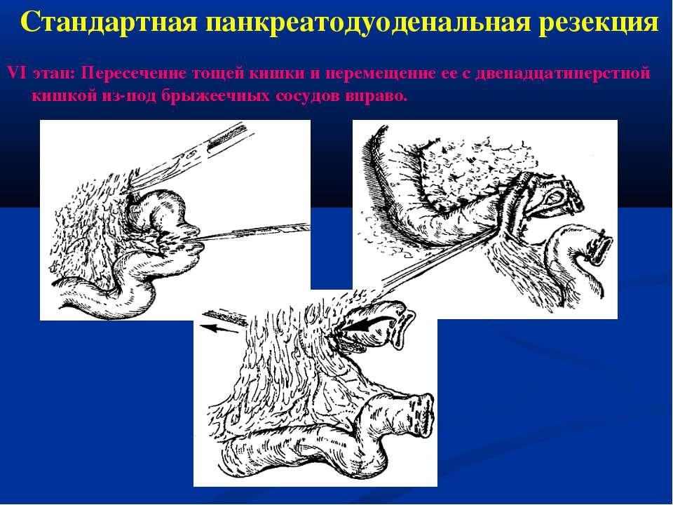 VI этап: Пересечение тощей кишки и перемещение ее с двенадцатиперстной кишкой...