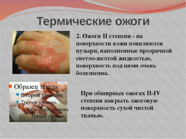 Термические ожоги 2. Ожоги II степени - на поверхности кожи появляются пузыри...