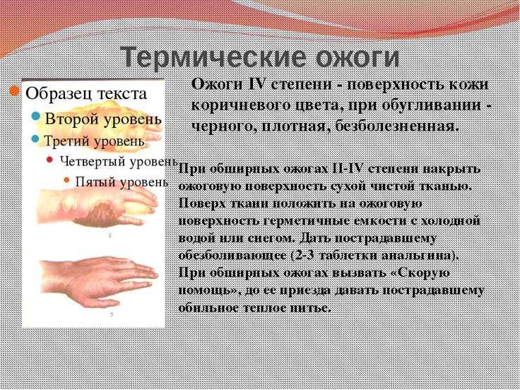 Термические ожоги Ожоги IV степени - поверхность кожи коричневого цвета, при ...