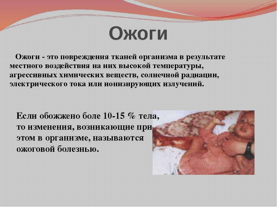 Ожоги Ожоги - это повреждения тканей организма в результате местного воздейст...