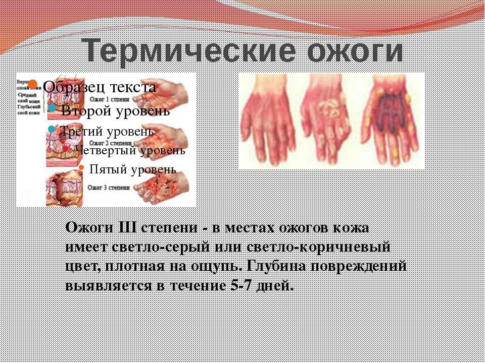 Термические ожоги Ожоги III степени - в местах ожогов кожа имеет светло-серый...