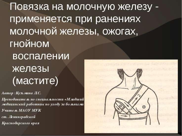 Повязка на молочную железу - применяется при ранениях молочной железы, ожогах...