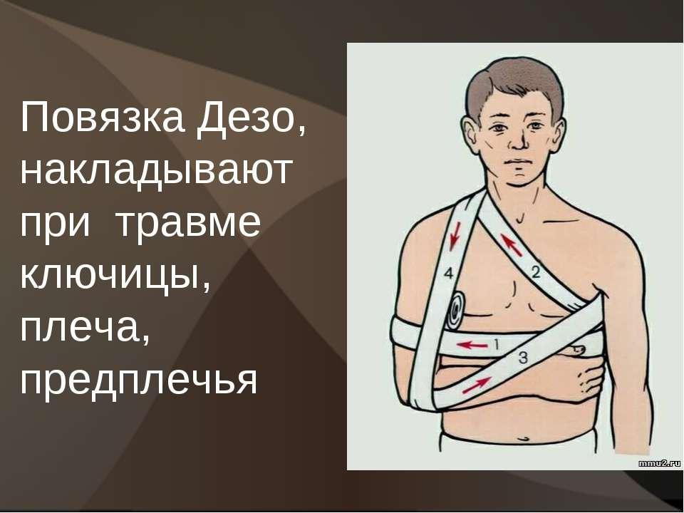 Повязка Дезо, накладывают при травме ключицы, плеча, предплечья