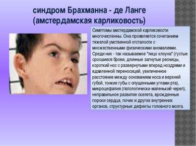 синдром Брахманна - де Ланге (амстердамская карликовость) Симптомы амстердамс...