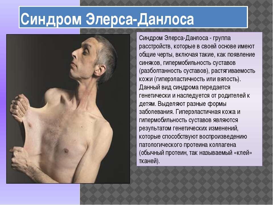 Синдром Элерса-Данлоса Синдром Элерса-Данлоса - группа расстройств, которые в...