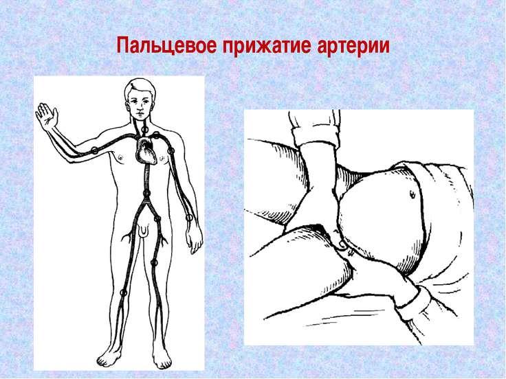Пальцевое прижатие артерии