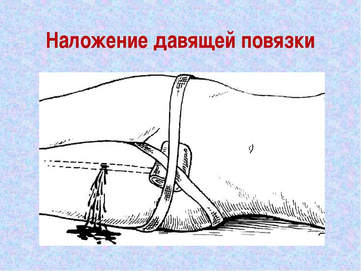 Наложение давящей повязки
