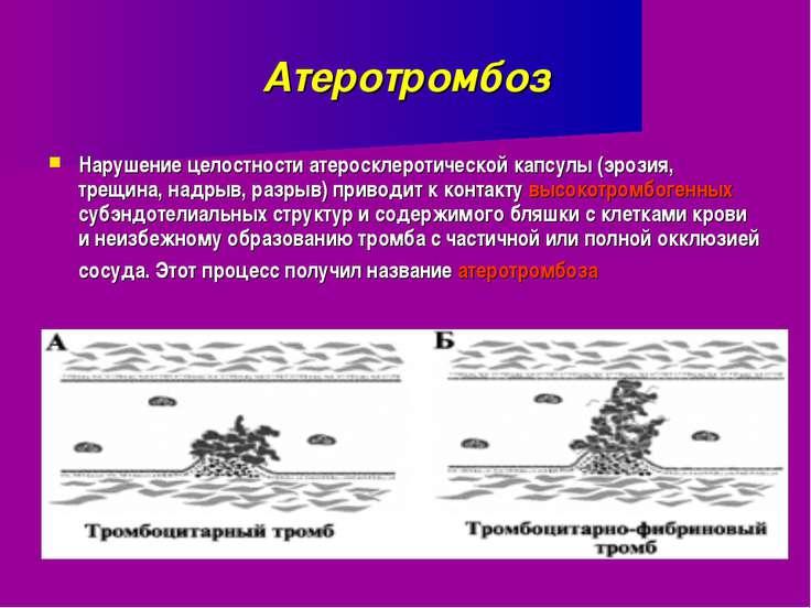 Атеротромбоз Нарушение целостности атеросклеротической капсулы (эрозия, трещи...