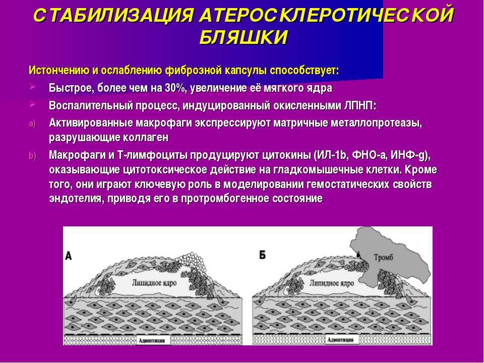 СТАБИЛИЗАЦИЯ АТЕРОСКЛЕРОТИЧЕСКОЙ БЛЯШКИ Истончению и ослаблению фиброзной кап...