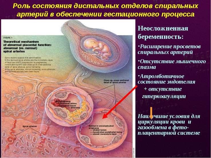 Роль состояния дистальных отделов спиральных артерий в обеспечении гестационн...
