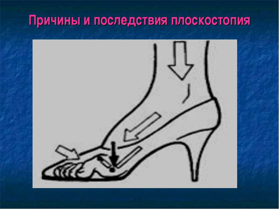 Причины и последствия плоскостопия