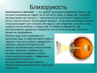 Близорукость Близорукость (миопия) — это дефект (аномалия рефракции) зрения, ...