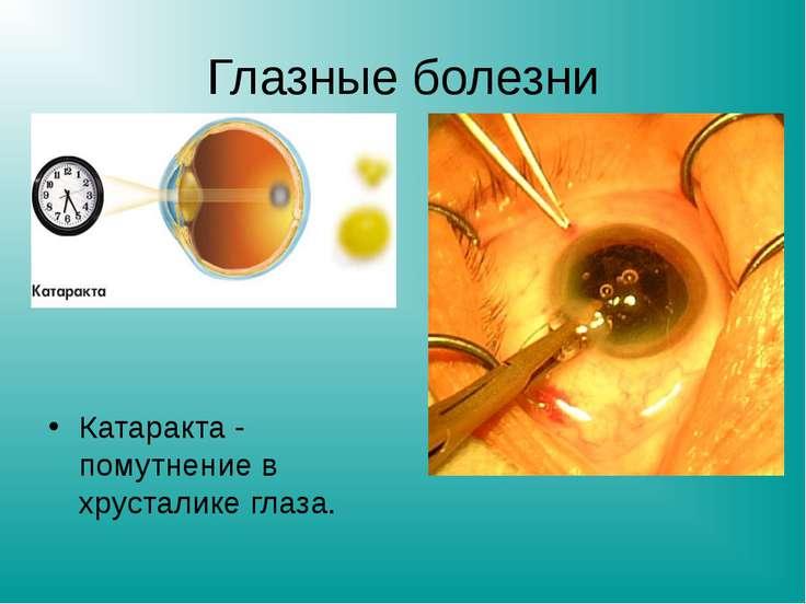 Глазные болезни Катаракта - помутнение в хрусталике глаза.