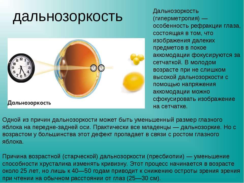 дальнозоркость Дальнозоркость (гиперметропия) — особенность рефракции глаза, ...