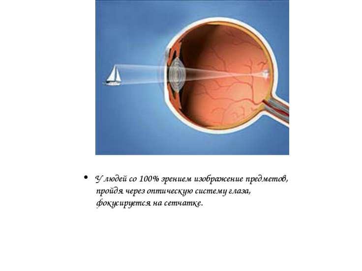 У людей со 100% зрением изображение предметов, пройдя через оптическую систем...